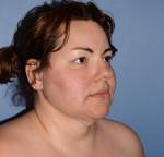 Chin and Jawline Liposuction