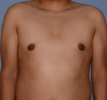 Male Breast Reduction Gynecomastia