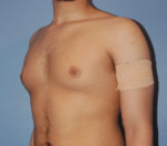 Male Breast Reduction Gynecomastia