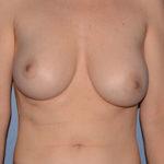 Breast Correction