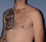 Pectoral Chest Implants