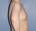 Breast Augmentation Fat