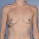 Breast Augmentation Implants