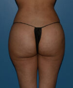 Butt Gluteal Implants